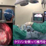 頚椎椎間板ヘルニア(MECD) 手術と症例解説【岩井整形外科内科病院】