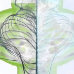 ボーンズ アンド ビヨンド 脊柱側弯症の治療 JP Bones and Beyond Scoliosis Educational
