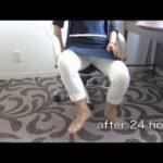 【臼蓋形成不全】50代女性 臼蓋形成不全への保存療法