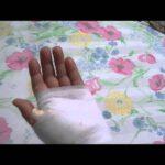 神業バネ指手術★手術法&経過報告・手術はナント1分・傷も残らない