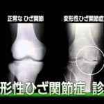【変形性膝関節症】 特集企画「医療のチカラ」 変形性ひざ関節症