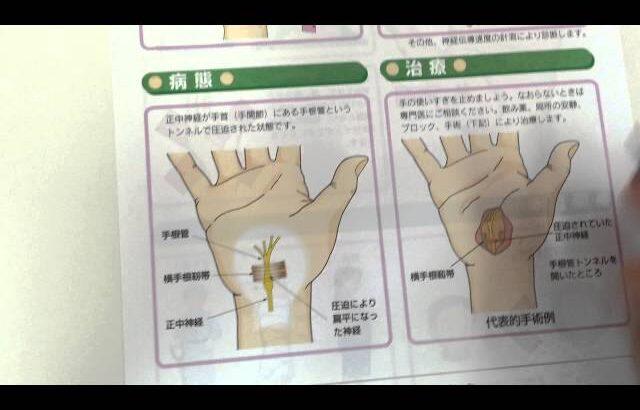 手根管症候群 手のしびれ 泉整形外科病院 高原政利  http//tehiji.com