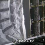 腰椎椎間板ヘルニア手術(PELD)症例解説【岩井整形外科内科病院】