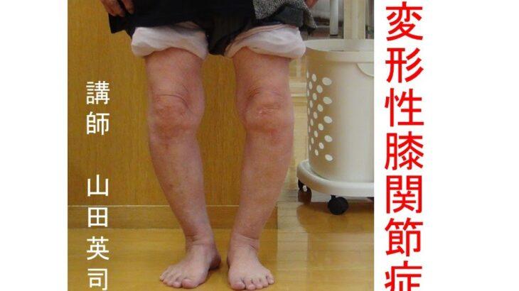 30..2.12 変形性膝関節症の保存的治療戦略(山田英司先生)