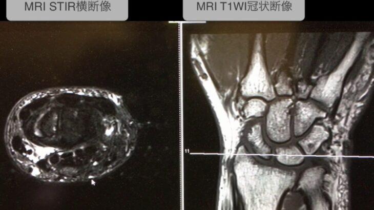 手根管症候群のMRI画像