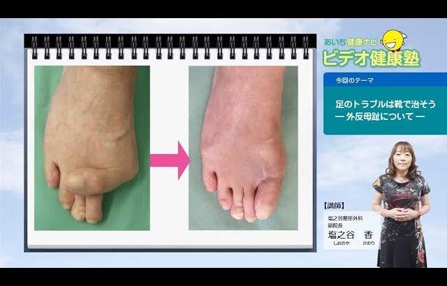 足のトラブルは靴で治そう ー外反母趾についてー