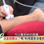 下床刺痛以為痛風,竟從此與足底筋膜炎為伍!健康2.0