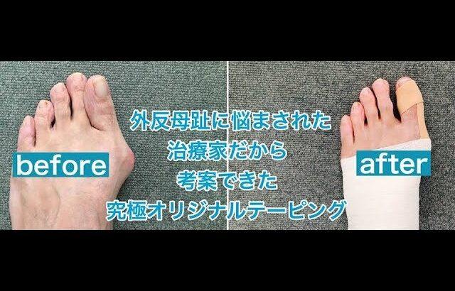 ー外反母趾の治療家が自ら考案した究極のテーピングー