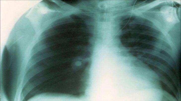 気管支炎、喘息、肺修復のためのサウンドセラピー – 30分