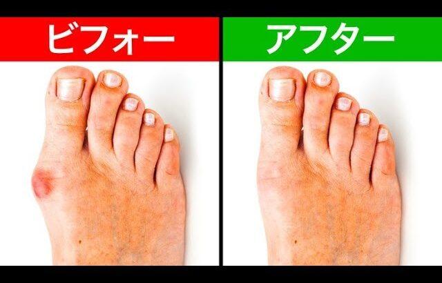 外反母趾に効く5つの効果的な家庭療法