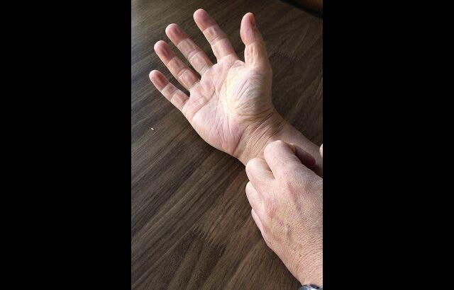 MTセラピー、バネ指、手根管症候群 2018年10月21日