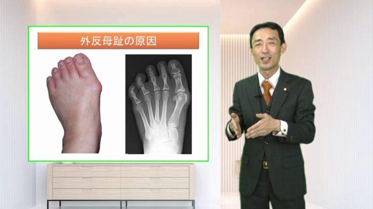 外反母趾の原因と治し方・治療法