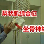 坐骨神经痛?屁股疼、腿疼、脚疼,腰不疼?怀疑梨状肌综合征