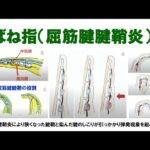 Aばね指の治療ビデオ1(8分)