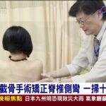 截骨手術矯正脊椎側彎一掃十年病痛