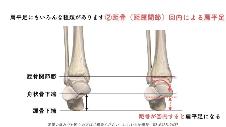 足底(足根骨)からのアプローチ 扁平足の原因