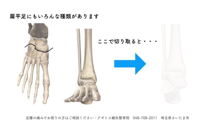足腰の障害「扁平足」の原因