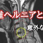 """頚椎ヘルニアを解説します """"神奈川県大和市中央林間 いえうじ総合治療院"""""""