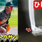 35歳トクサンの肘が限界…野球人生の終わりが近かった。