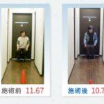 変形性膝関節症の治療から、6ヵ月後の結果【69歳女性】