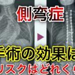 【scoliosis】側弯症の手術すると死亡率はどれくらい?#側弯症#手術#死亡率#scoliosis