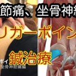 変形性股関節症の鍼治療 股関節痛、坐骨神経痛のトリガーポイント
