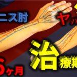テニス肘の『治療期間』と『重症度の検査方法』【テニス肘(上腕骨外側上顆炎)#2】