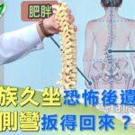 上班族久坐恐怖後遺症 脊椎側彎扳得回來? 健康2.0