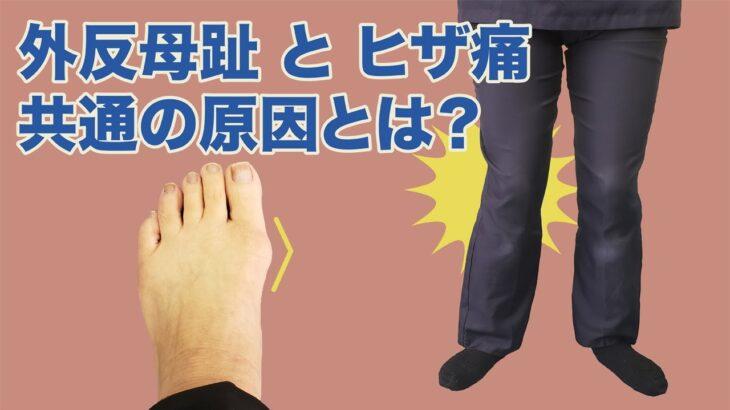 【専門家が教える】外反母趾を治せばヒザ痛も治る! 発生の原因は実は共通!