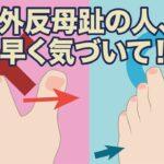 【専門家が教える】外反母趾の治り方の誤解! 知らずに頑張れば余計に悪化!
