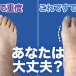 【専門家が教える】あなたも実は外反母趾かも? 早く気づけば足が細くなる!