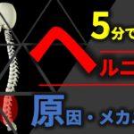 5分で理解できる椎間板ヘルニア原因とメカニズム【腰痛#3】