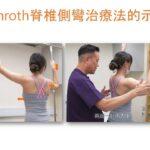 物理治療師 – 鄭進成 (Aldous) 示範德國Schroth脊椎側彎治療法-單胸彎
