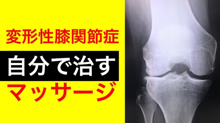 【9割が効果あり】変形性膝関節症の痛みを自分で治す方法