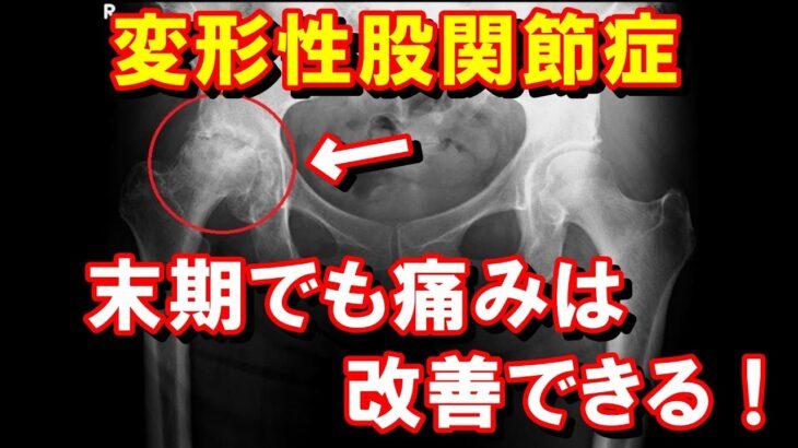 【症例動画】末期の変形性股関節症でも痛みの改善は可能です。股関節の変形=人工関節手術という常識は間違いです!股関節痛を改善させたいなら新しい考え方を学びましょう。
