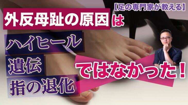 外反母趾は歩き方が原因。だから歩き方改善で治ると断言できます!
