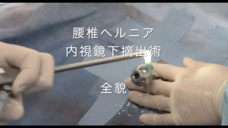 腰椎椎間板ヘルニア内視鏡治療 PELD/PED治療