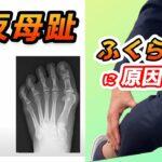 外反母趾の治し方 1人で痛みを取り除く方法と外反母趾の原因