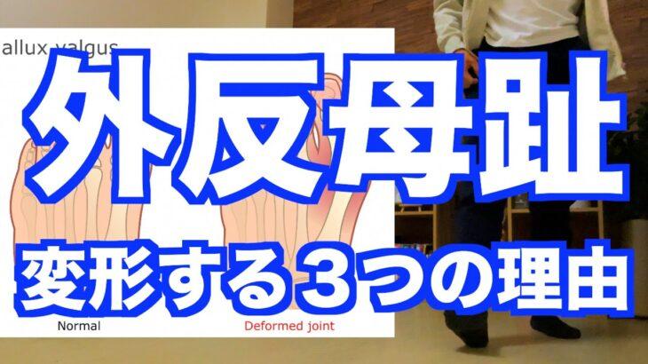 【外反母趾になる3つの理由】「外反母趾」は足の指だけケアしても改善しない!足の指の変形に繋がる理由と改善エクササイズ!【愛媛県松山市 ピラティス・整体】