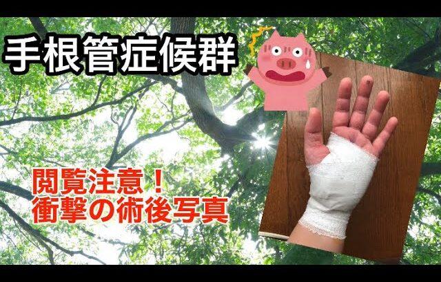 手根管症候群日記①