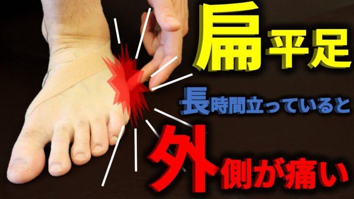 【扁平足】長時間立っていると足の外側が痛くなる!3枚のテーピングでアーチUP!