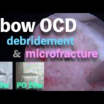 Elbow OCD: Arthroscopic Debridement, Micro Fracture and Osteochondral Defect Recovery   野球肘に対する鏡視下手術