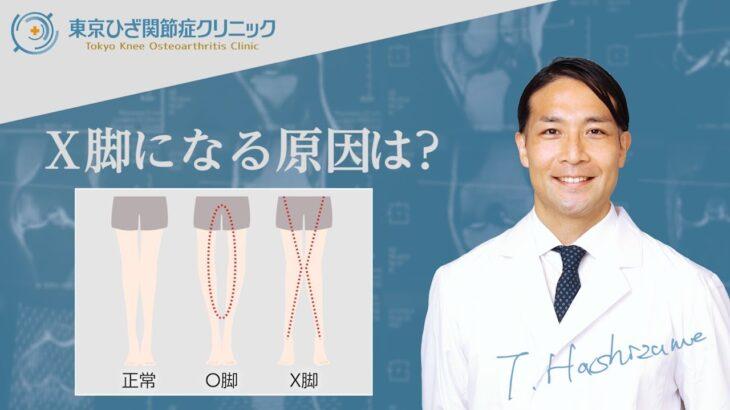 原因はX脚?!変形性膝関節症になった50代女性のMRI診断