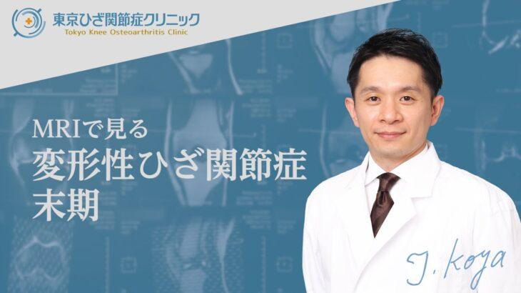 再生医療の適用となる、変形性ひざ関節症末期の症状