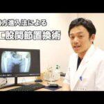 【リビング京都】変形性股関節症と前方進入法による人工股関節置換術について(まとめ)