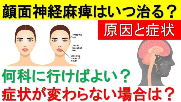 顔面神経麻痺はストレスで生じる!顔面神経麻痺の症状、原因、治療と完治するまでどれくらいかかるかを解説します。