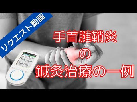手首の腱鞘炎の鍼灸治療|リクエスト動画、電気鍼、運動鍼